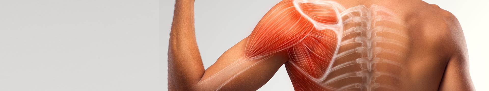肌肉痠痛-名杏診所Dr.永生樹