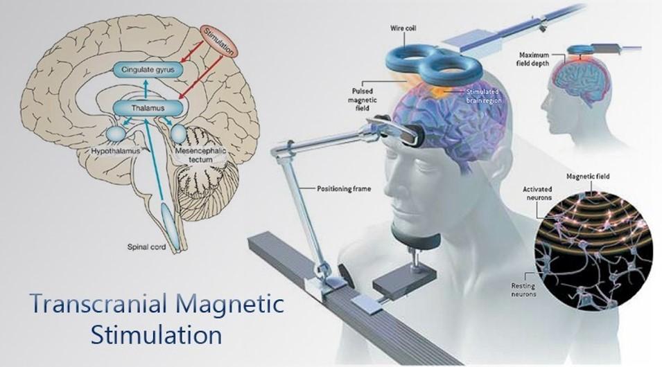 rTMS(TMS)|rTMS重覆經顱磁刺激-名杏診所Dr.永生樹
